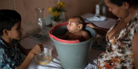 Solange Ferreira meletakkan bayinya yang menderita mikrosefali, Jose Wesley ke dalam ember di rumahnya di Brasil. Menurut Ferreira, Jose menikmati berada di dalam air. (AP Photo/Felipe Dana).